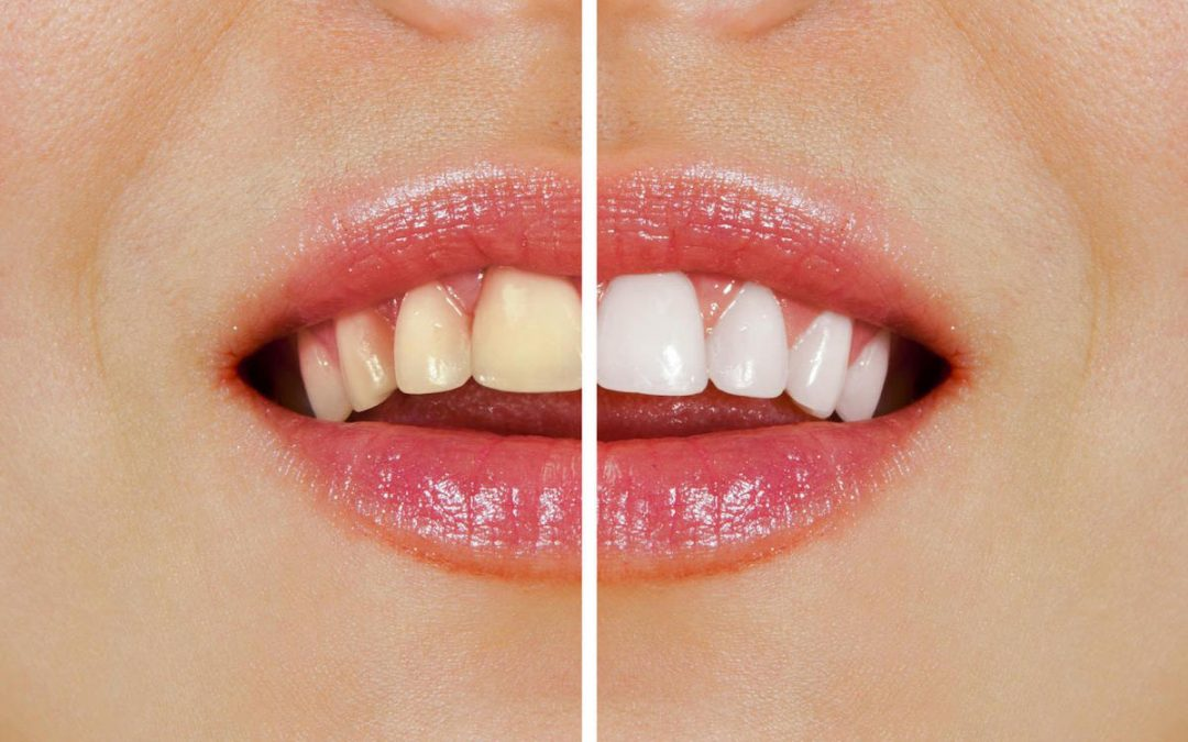6 Effective Ways To Get Healthy, White Teeth | Teeth Whitening Port Macquarie