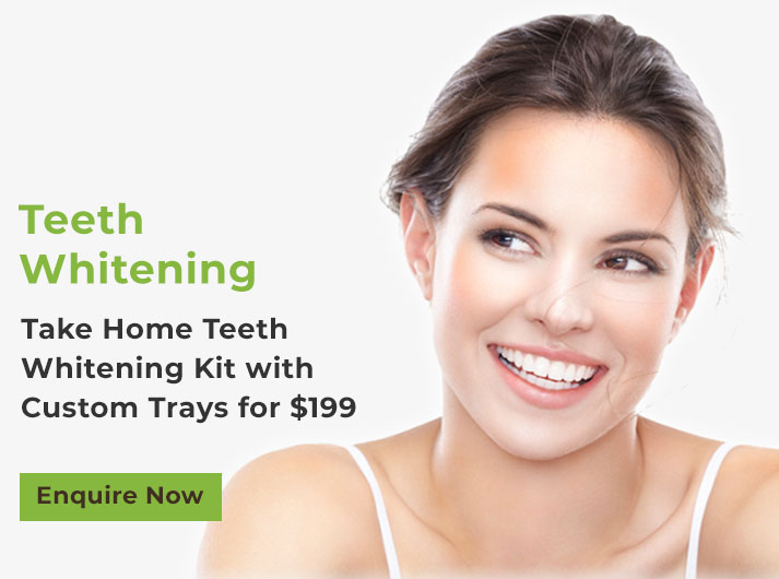 take home teeth whitening kit banner port macquarie
