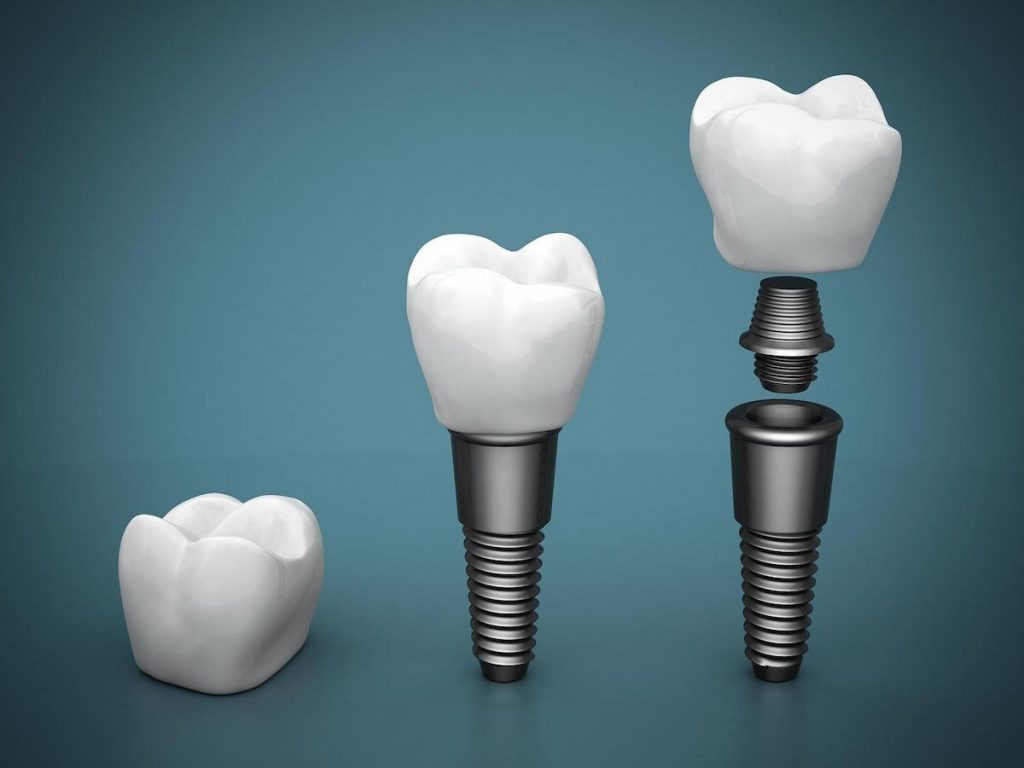 top 5 reasons dental implants are the best choice for replacing missing teeth in port macquarie