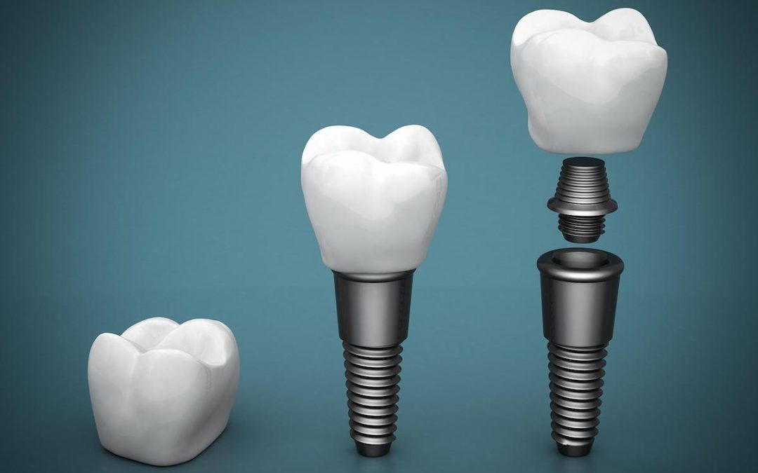 Are Dental Implants Best Choice for Replacing Missing Teeth?