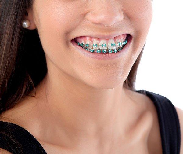 types of orthodontic treatments port macquarie
