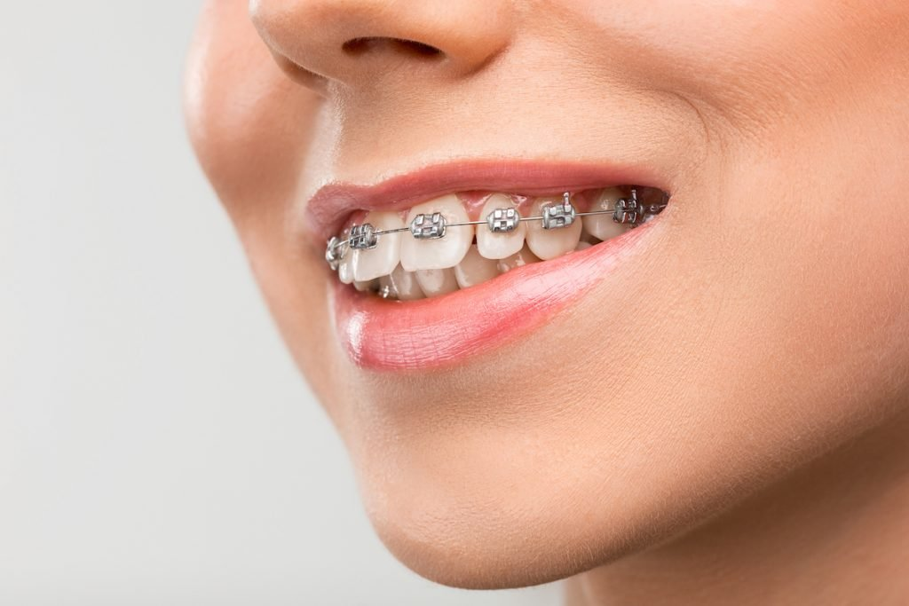can i get braces with missing teeth
