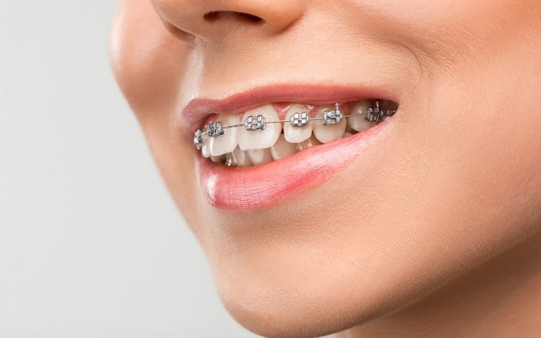Can I Get Braces with Missing Teeth?