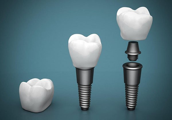 dental implants port macquarie