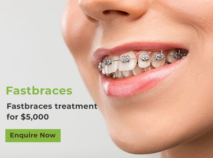 fastbraces treatment banner port macquarie