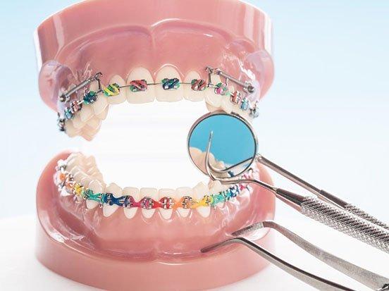 orthodontics port macquarie