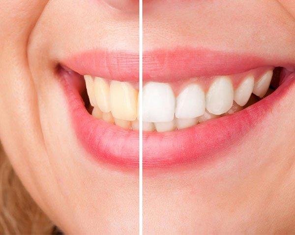 cosmetic dentist port macquarie