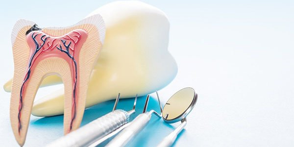 dental abscess port macquarie