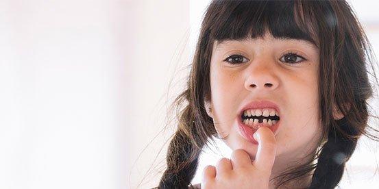 broken tooth management port macquarie
