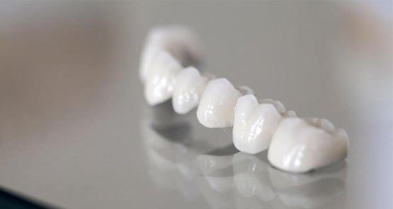 dental-bridges-blurb-port-macquarie