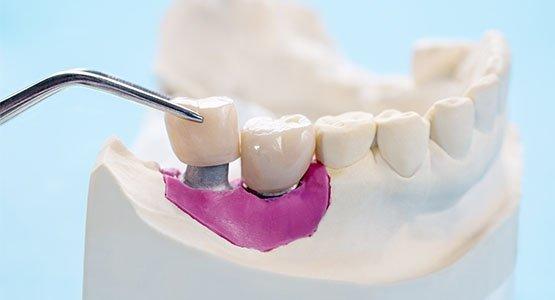 dental crown blurb port macquarie