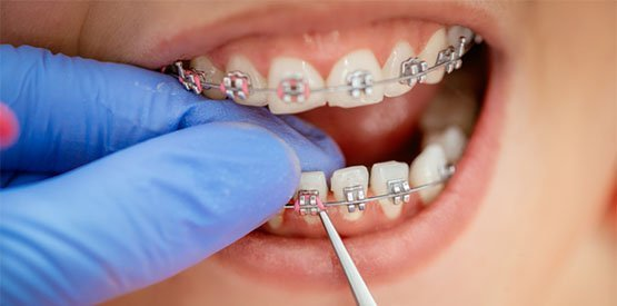 braces-care-port-macquarie